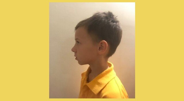 How I learned about the lack of cervical lordosis in children
